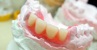 partial-denture-1