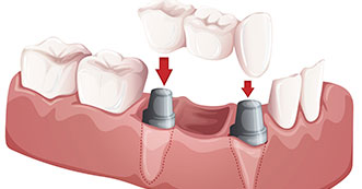 Partial Denture services: Onyx Denture and Implant Clinic